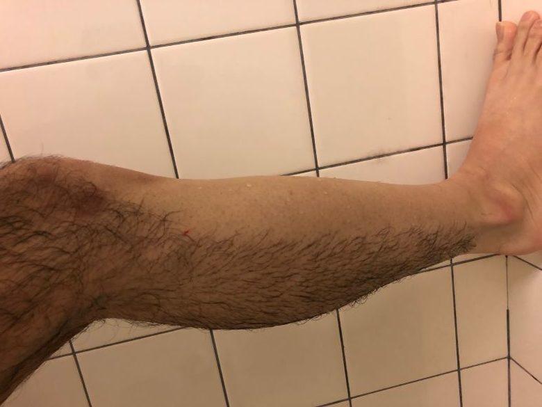 剃る ケノン使用後